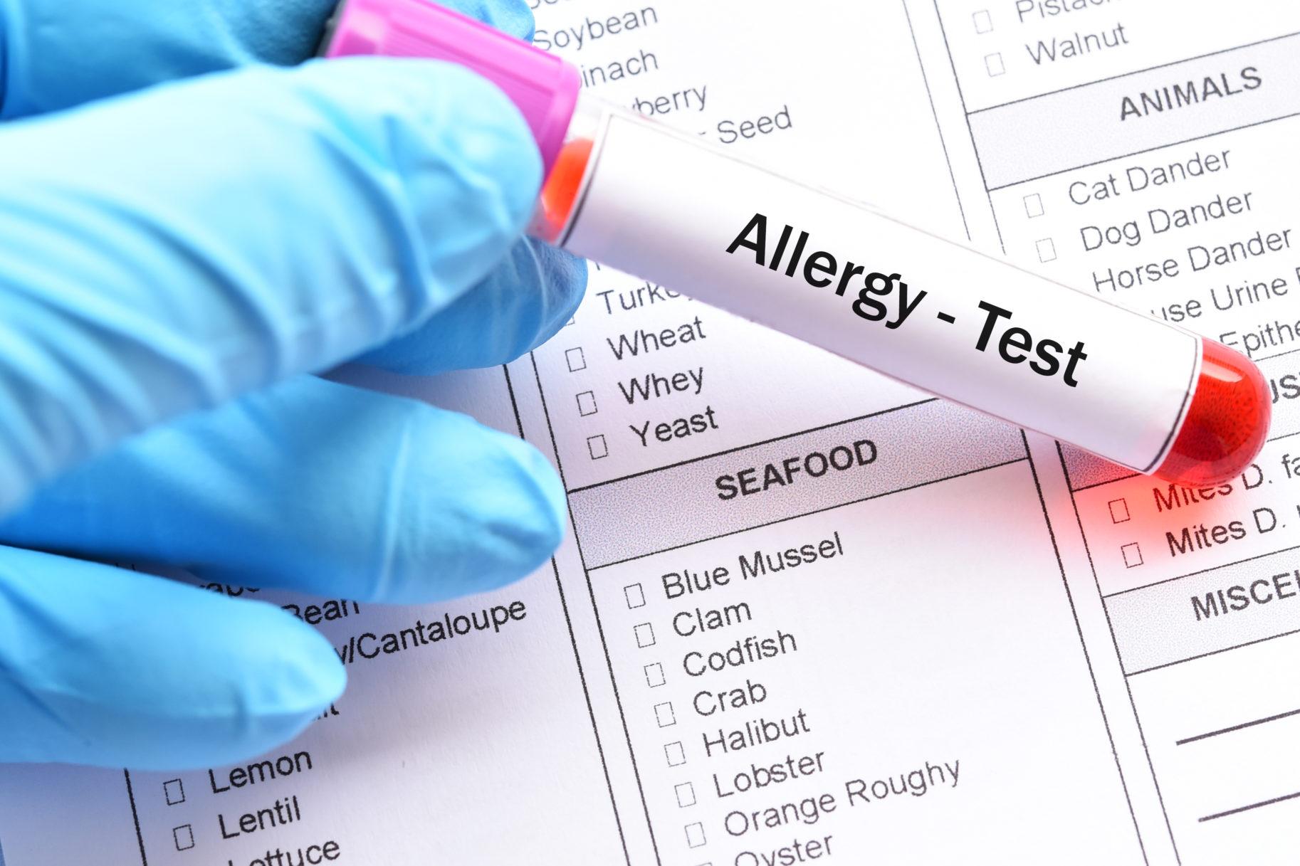 diagnozowanie alergii na mleko
